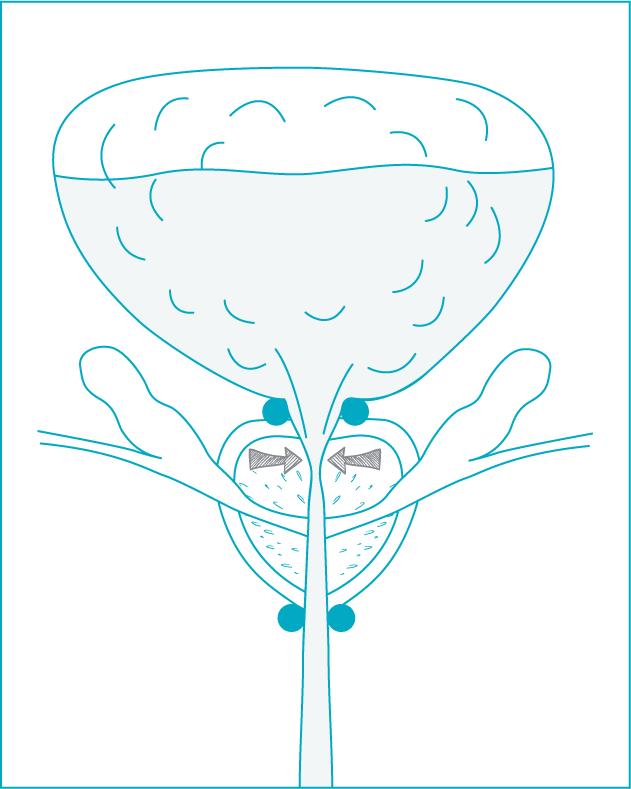 schema-incontinence-adenome-01